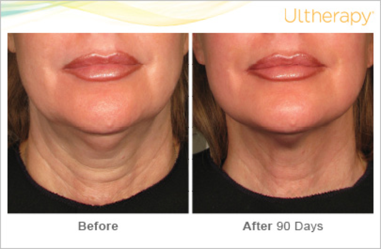 ultherapy before and after 7
